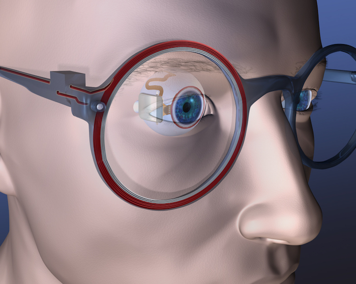Dr. Shawn Kelly's retinal implant, a product of a team of researchers at CMU and MIT.